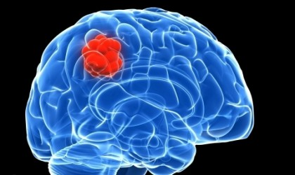 New method to kill brain cancer with skin cells