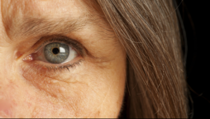 Eye calcifications an indicator of age-related macular degeneration