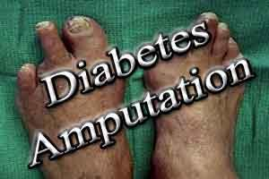 Diabetic foot amputations may be avoided with silver nanoparticles : Study
