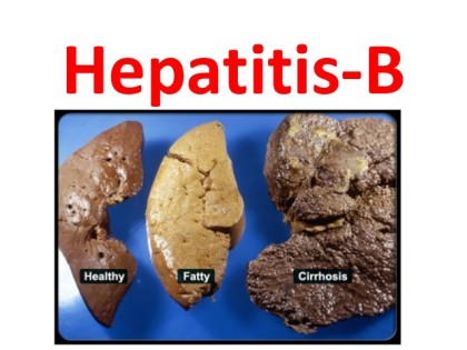 WHO guidelines on Chronic Hepatitis B