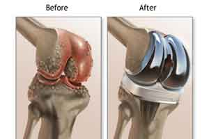 New Delhi : Pin-less computer navigated total knee replacement performed