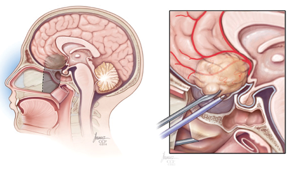 Skull Base Surgery Speciality Medical Dialogues