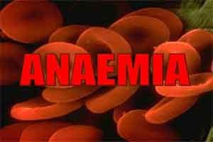 Hydroxyurea available for Pediatric Patients With Sickle Cell Anaemia