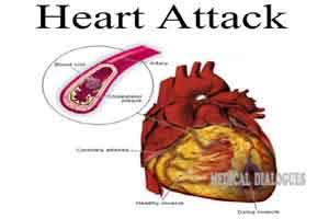 Heart attack risk increases 17-fold following respiratory infections