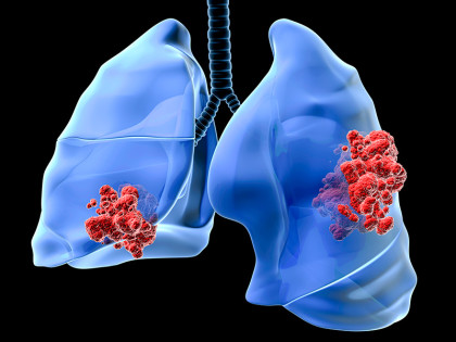 Largest genome-wide study of lung cancer susceptibility identifies new causes