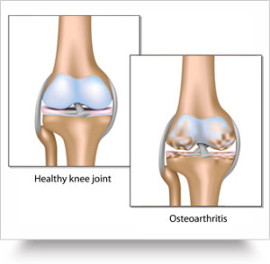 60 million cases of osteoarthritis in India by 2025