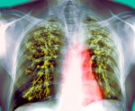 Statins significantly reduce risk for active tuberculosis