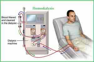 KDOQI clinical practice guideline for hemodialysis adequacy
