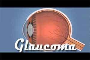 Patients with obstructive sleep apnea  more likely to develop glaucoma
