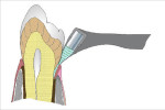 Heavy metals in baby teeth linked with autism  : NIH study