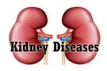 Researchers discover MRI can measure kidney scarring and predict future kidney function