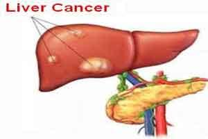 Nivolumab shows long-term survival in severe liver cancer patients: Study