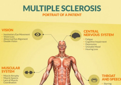 Herpes virus linked to MS, other brain disorders