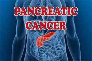 Novel nanomedicine inhibits progression of pancreatic cancer in mice