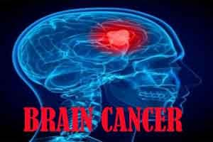 Novel immunotherapy may beat brain cancer