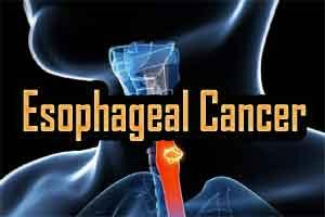 Oral bacteria may be linked to esophageal cancer: New study