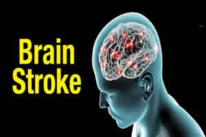 One fifth of brain stroke patients in India aged 40 and below: Doctors