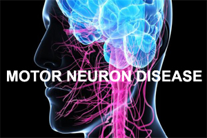 Image Gallery Motor Neuron Disease