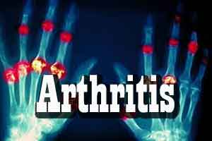 Study Lays Groundwork for Arthritis Prevention