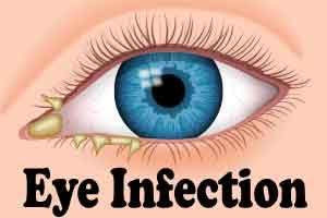 Contact lenses may alter eye's natural bacteria, says study