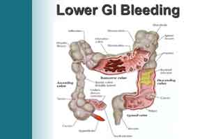 Management of acute lower GI bleeding: British Society of Gastroenterology guidelines