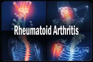 Ultrasound helpful in early detection of Rheumatoid Arthritis