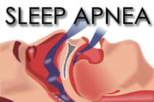 Obstructive sleep apnea linked with higher risk of gout