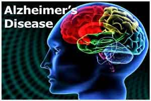 Sniff test may help diagnose Alzheimers disease