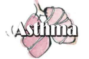 People with asthma at increased risk for atrial fibrillation : JAMA