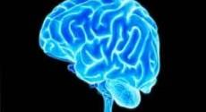 Brain tumor next to the brain stem treated with Radio Surgery
