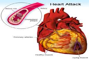 Cholesterol crystals causative agents for impending heart attack : Study