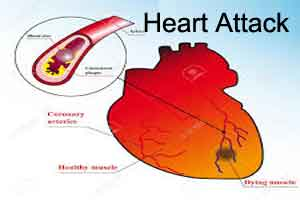 Standards to prevent repeat Heart attack -European Society of Cardiology