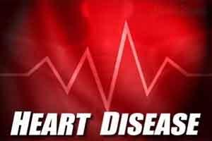 Transgender individuals at increased risk of Heart Attack