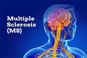 New hope for treatment of multiple sclerosis : AAN Annual Meeting