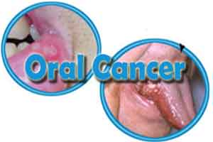 Prevention of Oral Cancer : Updates
