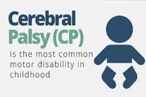 Walk-DMC  to Improve Cerebral Palsy  Surgery Outcomes in Children