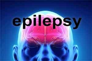 Levetiracetam drug of choice for infantile epilepsy
