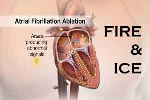 FIRE AND ICE Trial: Comparison to treat Atrial Fibrillation