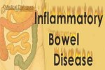 Psoriasis significantly associated with inflammatory bowel disease: JAMA