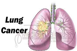 New Blood test  for early detection of lung cancer