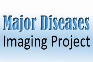 Worlds largest imaging project to shed light on major diseases