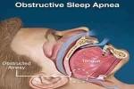 Regular CPAP use cuts diabetes risk by half in sleep apnea patients