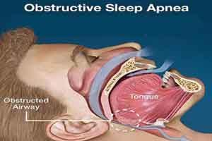 Sleep apnea could favor tumor growth at young ages