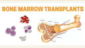 Doctors create MAGIC algorithm to predict bone marrow transplant patients risk of dying