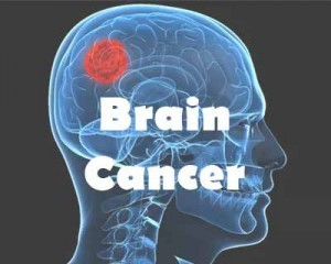 Glowing tumors help operate brain cancer better