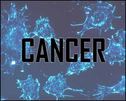 New, non-invasive method to wipe out cancerous tumors: study