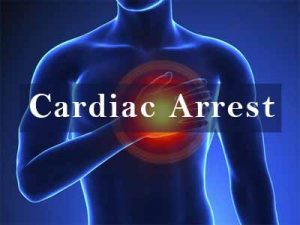 Cardiac arrest patients do better if taken immediately to a specialist heart center