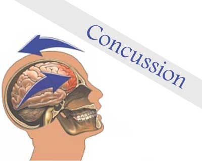 Recovery from Concussion for children and youth may take two years