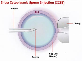 World Report on Fertility Treatments Reveals High Use of ICSI