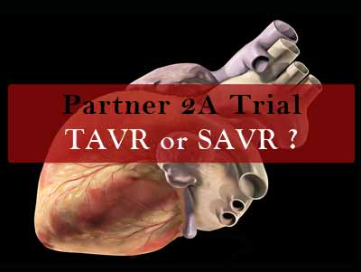 Cardiology Update: Partner 2A trial